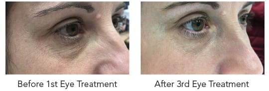 hydrafacial eye treatment
