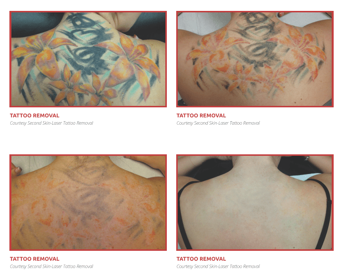 Tattoo removal _Colour